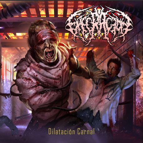 """Execración """"Dilatación Carnal"""" (CD)"""